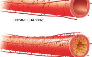 Признаки ишемии миокарда