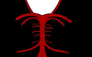 Синусовая аритмия википедия